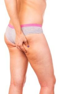 Mieux Connaitre la Cellulite