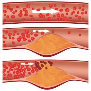 Effet cholestérol sur artères