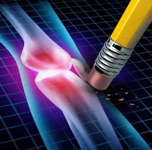 Comment protéger vos articulations et soulager l'arthrose