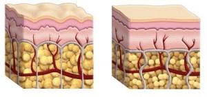 Type de cellulite